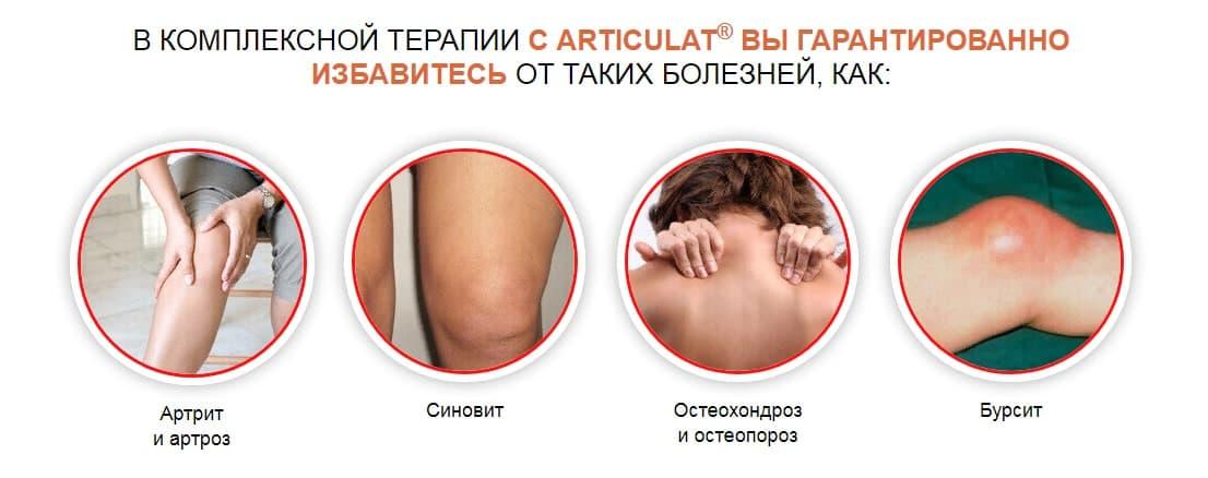 Articulat лечит основные болезни суставов